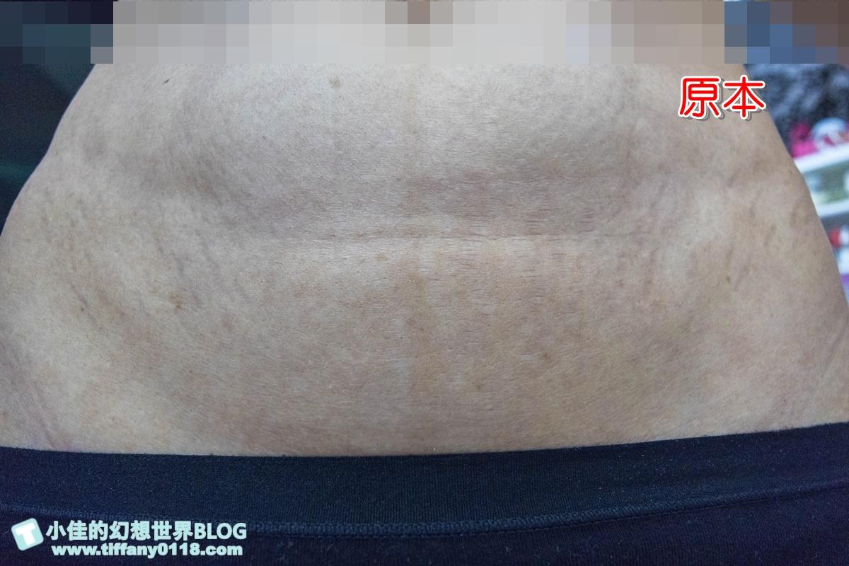 [醫美]Tixel提可塑搶救我的年久妊娠紋/彭賢禮皮膚科診所/非侵入式、恢復期短超方便